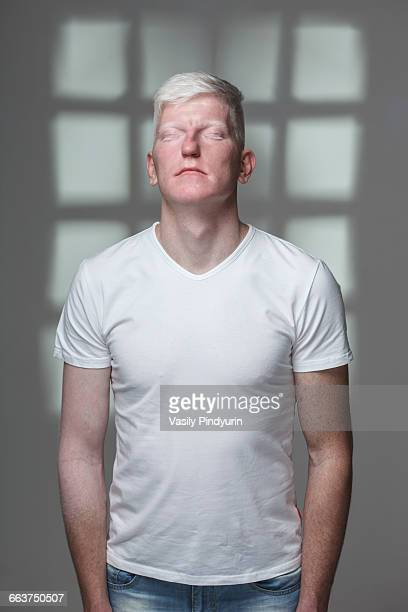 Albino man with closed eyes standing against gray background