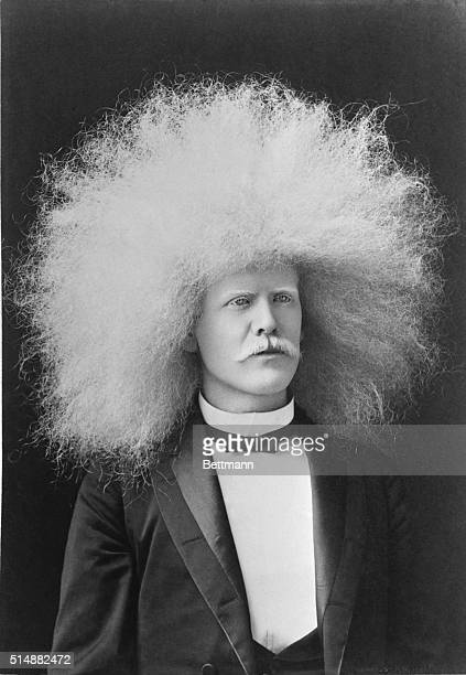 Albino man with great growth of hair. Undated photograph.