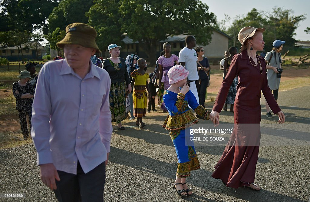 TANZANIA-ALBINOS-AFRICA-HUMAN-RIGHTS : News Photo