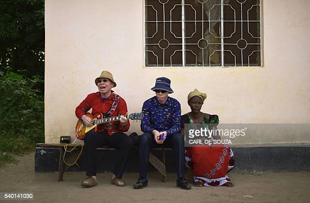 Albino singer King Shube plays a guitar on Ukerewe Island Lake Victoria on June 14 2016 Ukerewe island is home to many albinos Many of the first...