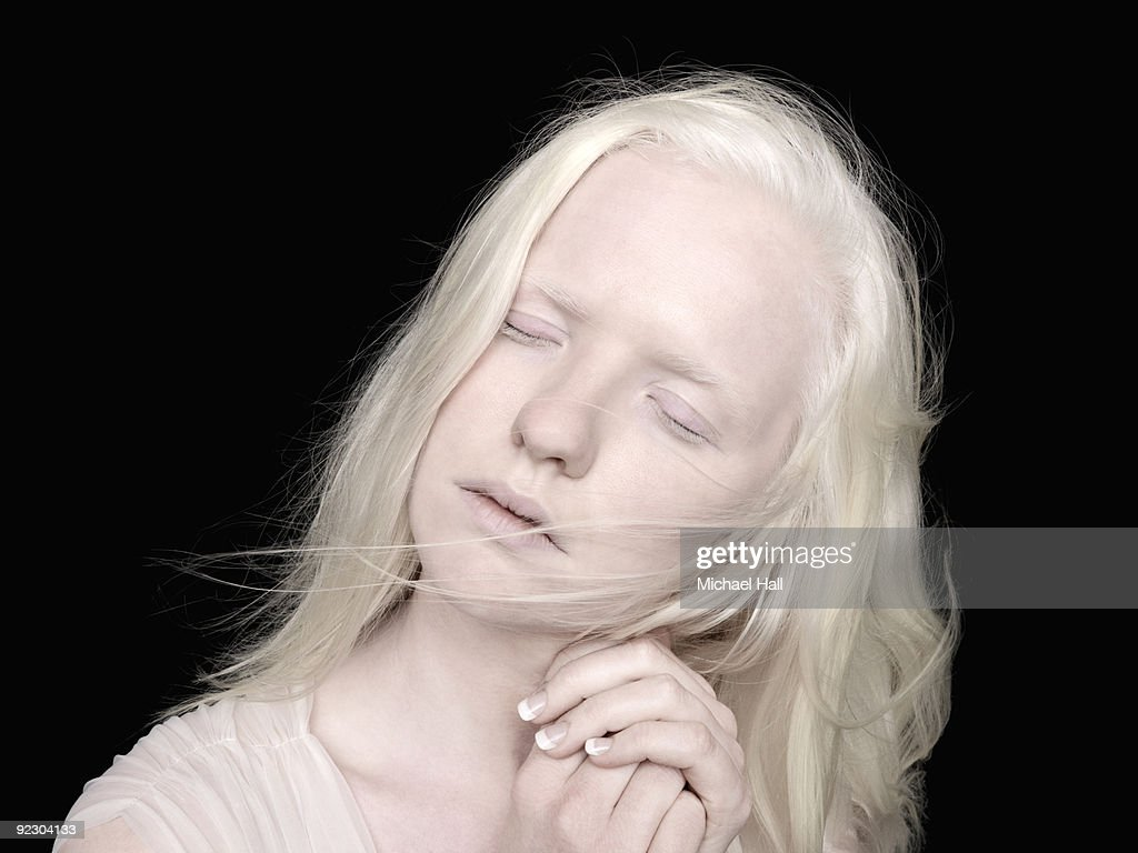 Albino Woman Foto Stock  Getty Images-9018