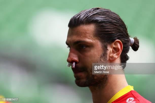Aleksandar Dragovic of Bayer 04 Leverkusen reacts as he has a nose bleed during the Bundesliga match between SV Werder Bremen and Bayer 04 Leverkusen...