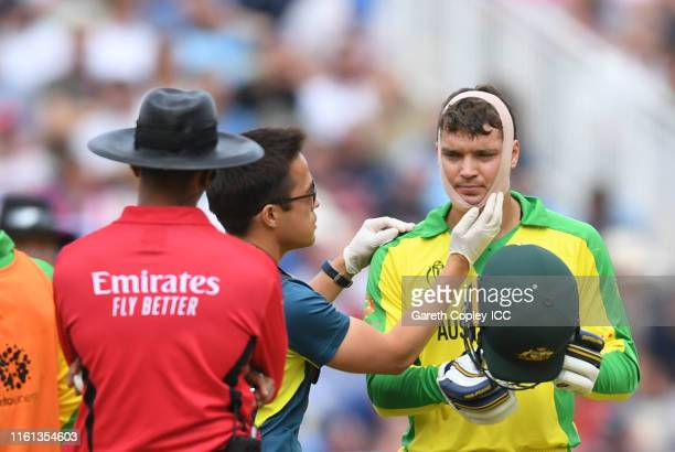 Alex Carey of Australia receives medical attention during the SemiFinal match of the ICC Cricket World Cup 2019 between Australia and England at...