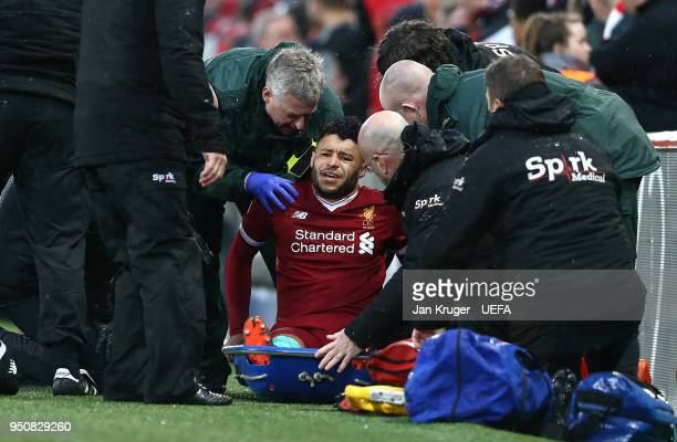 Alex OxladeChamberlain of Liverpool is injured during the UEFA Champions League Semi Final First Leg match between Liverpool and AS Roma at Anfield...