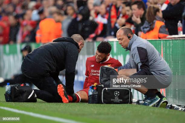 Alex OxladeChamberlain of Liverpool is treated for an injury during the UEFA Champions League Semi Final First Leg match between Liverpool and AS...