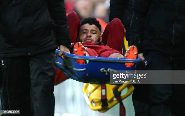 Alex OxladeChamberlain of Liverpool leaves the pitch on a stretcher during the UEFA Champions League Semi Final First Leg match between Liverpool and...