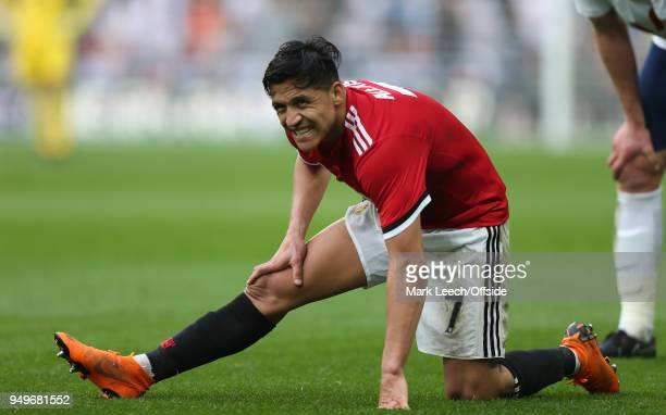 Alexis Sanchez of Man Utd grimaces as he stretches his leg during the FA Cup semi final between Manchester United and Tottenham Hotspur at Wembley...