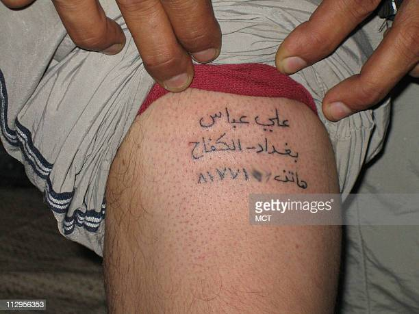 Ali Abbas a 24yearold Iraqi man shows a tattoo giving his name neighborhood and family phone number as identification in case he is killed in a...