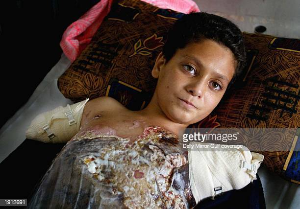 Ali Ismaeel Abbas lays injured in her hospital bed in Saddam Hospital April 10 2003 in Baghdad US warplanes fired six satelliteguided bombs at an...