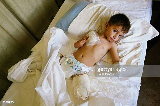 Ali Nassar Fadil 4 years old lies in a ward at the Italian Red Cross hospital on April 13 2004 after loosing his left arm and leg 5 days ago from a...