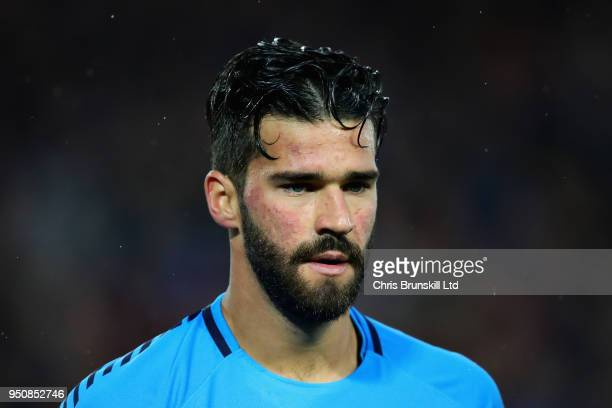 Alisson of AS Roma looks on during the UEFA Champions League Semi Final First Leg match between Liverpool and AS Roma at Anfield on April 24 2018 in...