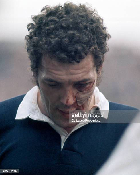 Alistair McHarg of Scotland with a facial injury during the Five Nations international rugby union match against England at Twickenham in London on...