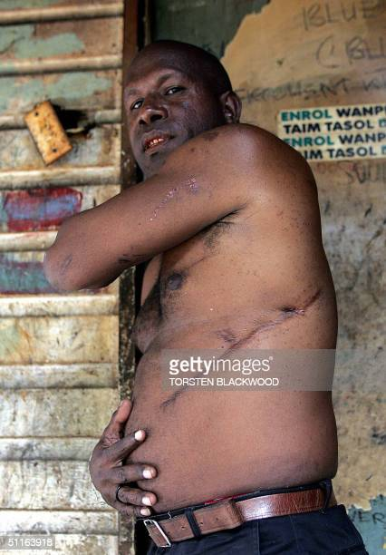 Allan Omaro leader of the feared Koboni raskol gang proudly displays his battle scars and bullet holes in the squalid shanty town of Kaugere in Port...