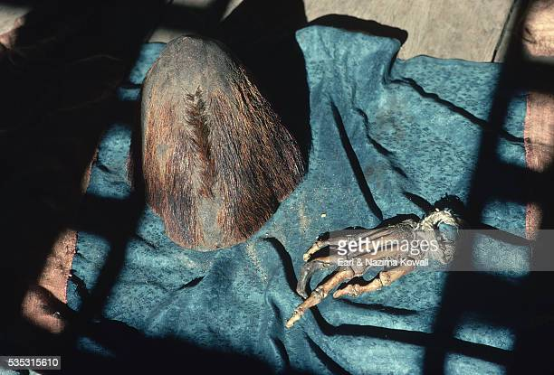 Alleged Yeti Scalp and Hand