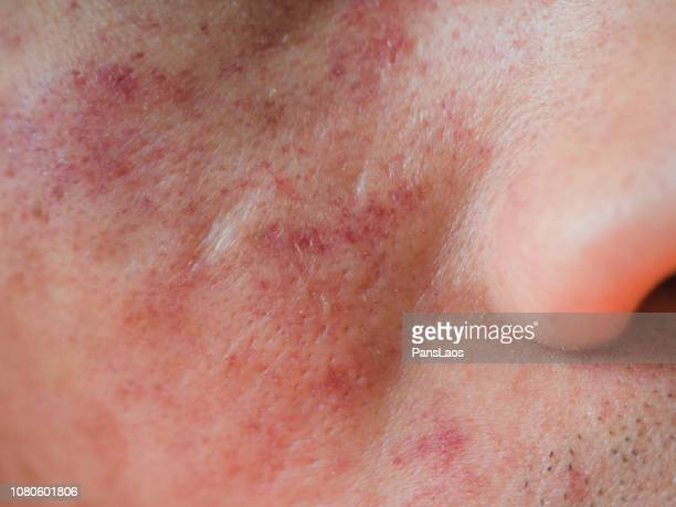 allergic dermatitis skin on face - dermatitis fotografías e imágenes de stock