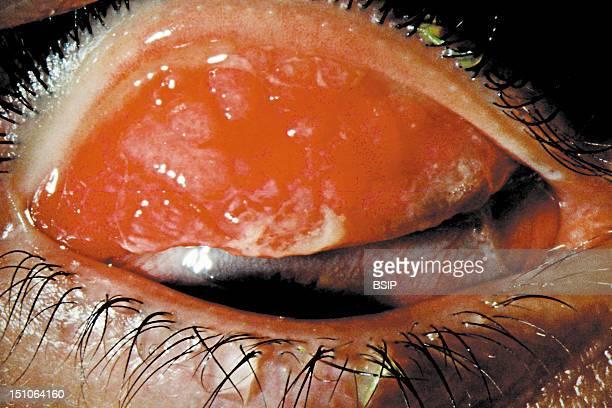 Allergic Follicular Purulent Conjunctivitis Also Called Springtime Allergies