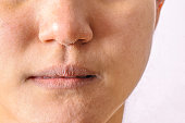 Allergic women have eczema dry nose and lips on winter season closeup.