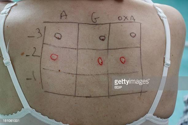 Allergy Test Woman