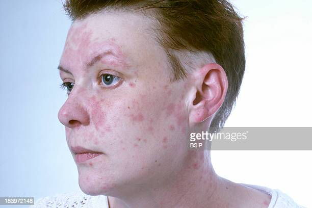 Allergy Woman Hairdresser Allergic To Products Of Her Trade Cobalt Nickel And Cleaning Products She Also Suffers From Pelade