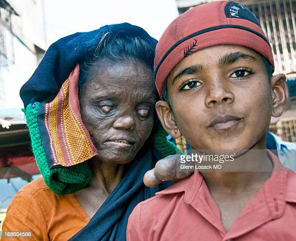 CONTENT] along Bandra road Mumbai A lady with severe leprosy clings to her handsome grandson Mumbai INDIA she begs and he does schoolwork