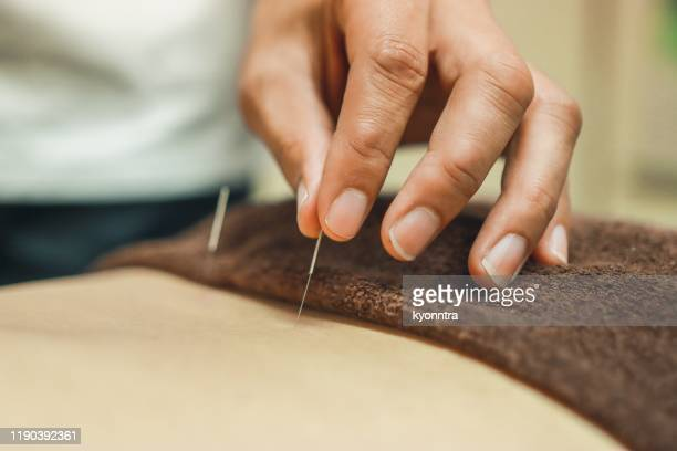 alternative medicine which is acupuncture in asia - body massage japan stock pictures, royalty-free photos & images