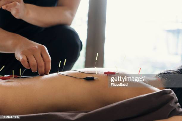alternative therapy with acupuncture in a clinic - acupuncture needle stock pictures, royalty-free photos & images