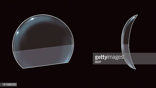 Alterned Vision Contact Lens Bifocal With Segments Correction Of Presbyopia These Lenses Are Based On The Same Principle That Bifocal Glasses With...