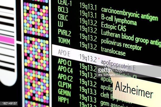 Alzheimer ディジース