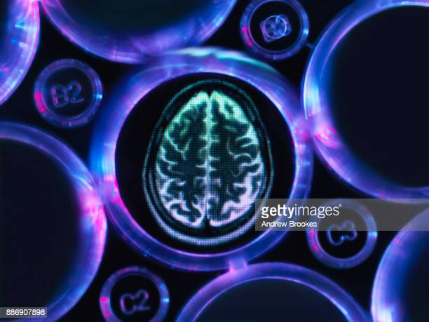 alzheimers and dementia research, a brain scan in multi well tray used for research experiments in laboratory - dementia stock pictures, royalty-free photos & images