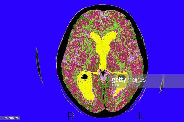Alzheimer'S Disease Scan Brain Of A Patient Affected By Alzheimers Disease Axial Section Median Portion Of Dilated Third Ventricle Symmetrical...