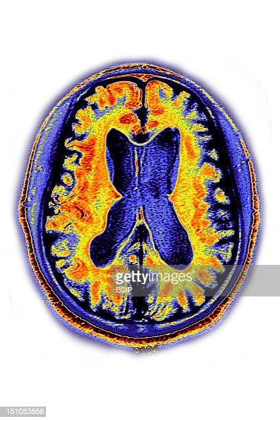 Alzheimer's Disease Senile Dementia Due To Progressive Degeneration Of The Cortex And Neurons Between 65 And 85 Years Of Age Mri Of Cerebral Atrophy...