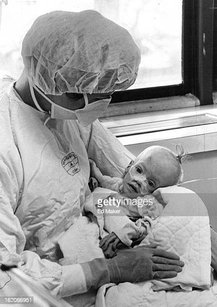 JAN 28 1976 JAN 19 1976 Amanda Hull is Held by her Mother Mrs Carol Hull The child has extremely rare disease called severe immune deficiency