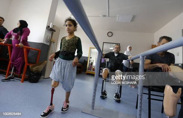 Amani a 10yearold Syrian amputee from the eastern province of Deir Ezzor tries to walk with her new artificial limb at the Syrian Arab Red Crescent...