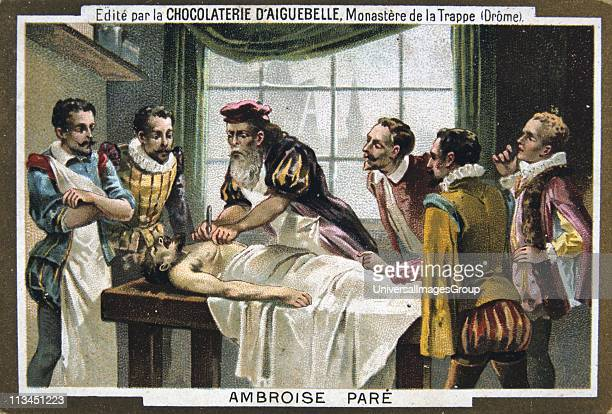 Ambroise Pare French military surgeon operating on a patient Chromolithograph c1900
