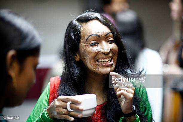 Amena Khatun Neela makes fun with her friends who were all attacked with acid