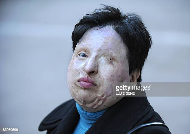 Ameneh Bahrami poses on March 5 2009 in Barcelona Bahrami of Iran was blinded by a man who threw acid in her face In 2008 an Iranian court ruled that...