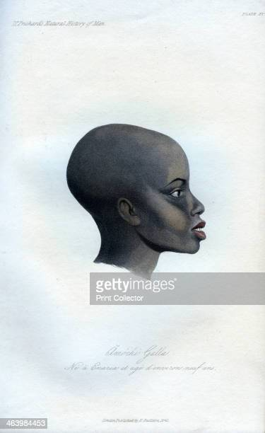 Amochi Galla 1848 A portrait of a Galla boy born at Enarea and aged about 9 years old An engraving from the Natural History of Man by James Cowles...