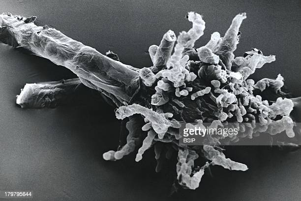 Amoeba Proteus SEM