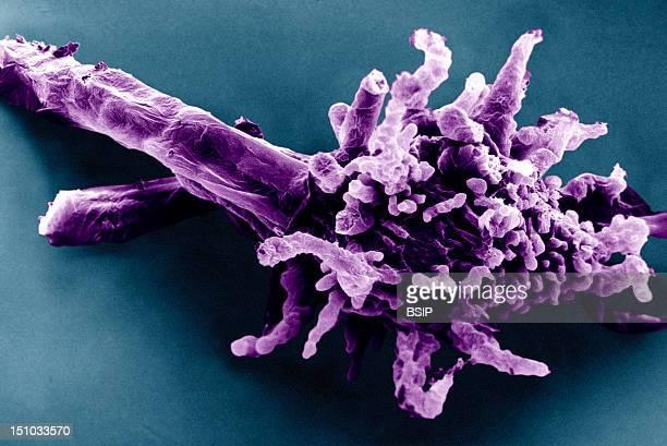 Amoeba Proteus Viewed Under Sem