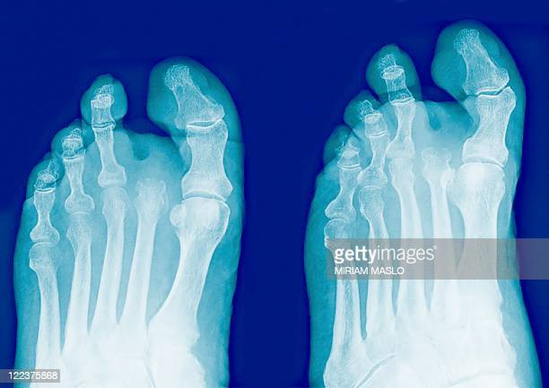 amputated toe, x-rays - diabetic amputation stock pictures, royalty-free photos & images