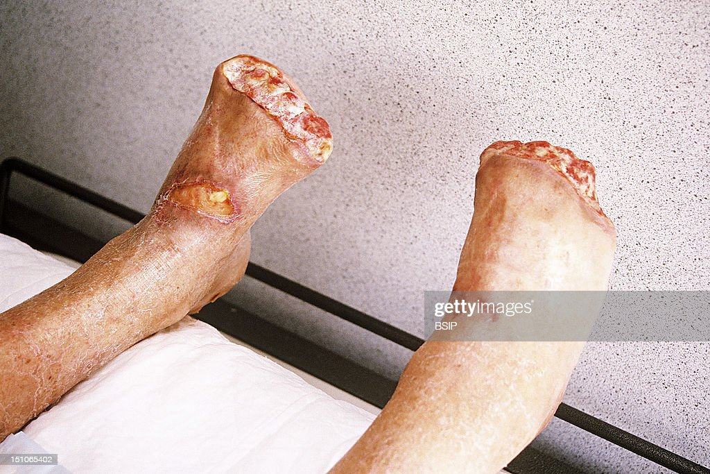 Perforating Ulcer In Diabetes : News Photo
