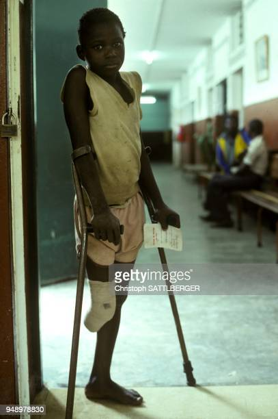 Amputee child in a Red Cross rehabilitation center in Maputo