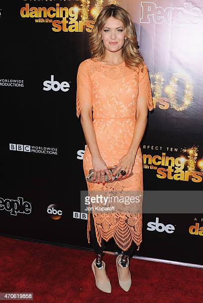 Amy Purdy arrives at the 10th Anniversary Of 'Dancing With The Stars' Party at Greystone Manor on April 21 2015 in West Hollywood California