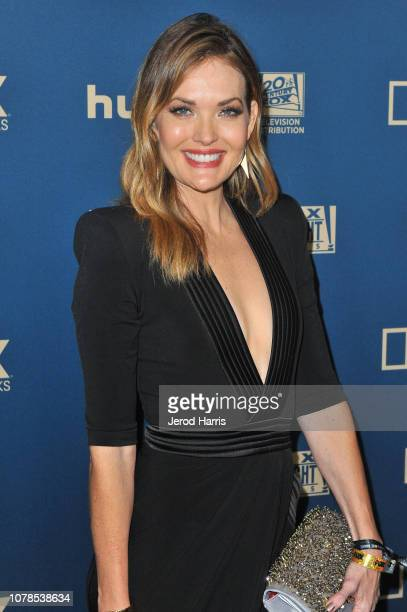 Amy Purdy attends the FOX FX and Hulu 2019 Golden Globe Awards After Party at The Beverly Hilton Hotel on January 6 2019 in Beverly Hills California