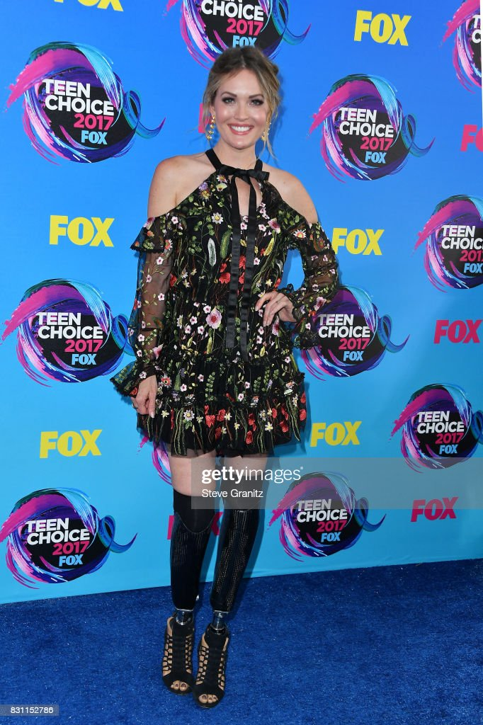 Amy Purdy attends the Teen Choice Awards 2017 at Galen Center on August 13, 2017 in Los Angeles, California.