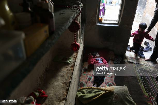 An 8yearold Syrian girl Ravan is seen lying on the bed at her house in besieged Damascus suburb of Eastern Ghouta Syria on December 07 2017 Due to...