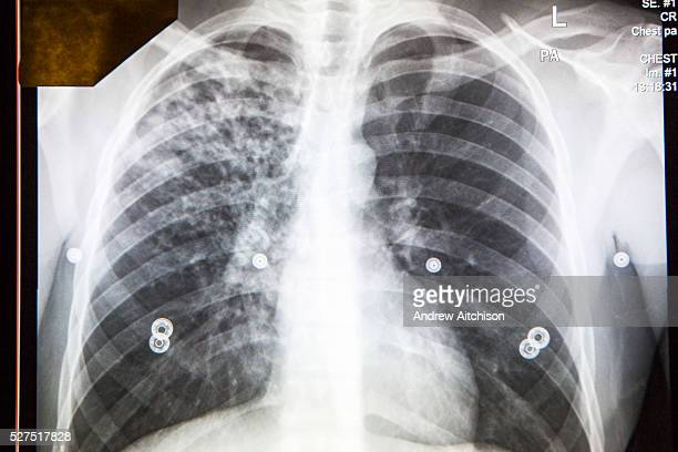An abnormal digital chest xray is shown on the screen in the NHS's Mobile Xray Unit The chest xray was taken as a public health screening for...