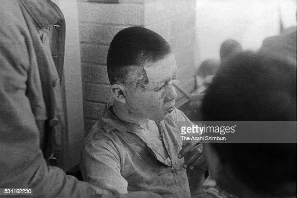 An a-bomb survivor waits for medical treatment at the Hiroshima Red Cross hospital on August 10, 1945 in Hiroshima, Japan. The world's first atomic...