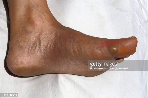 an abscess at a man's left toe. - blister stock photos and pictures