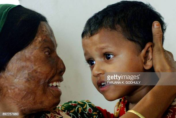 An acid victim mother embraces her daughter as she take part in an inauguration ceremony of the 'Acid Survivors Convention' in Dhaka 05 November 2007...